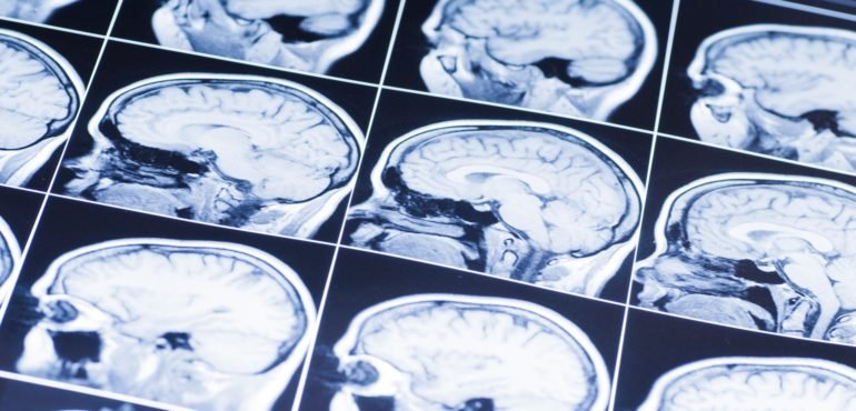Chronic Traumatic Encephalopathy Becoming A Growing Problem For Combat Veterans